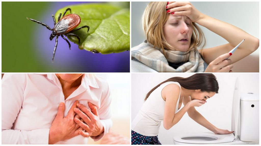 Симптомы клещевого энцефалита у взрослых