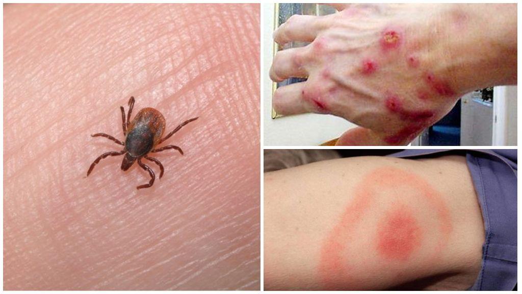 Заболевания, возникающие от укуса клеща