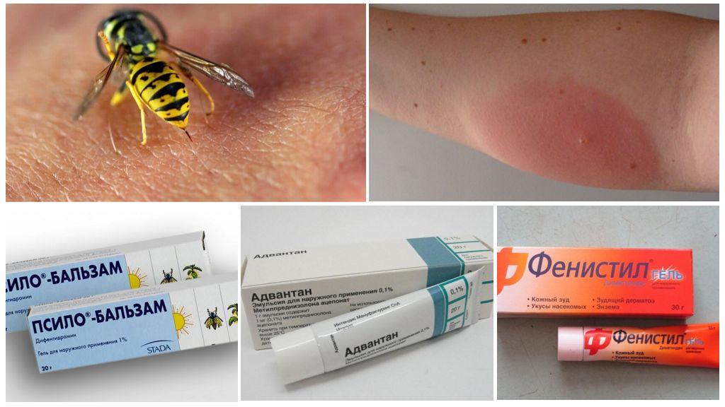 Противоаллергические мази при укусе осы