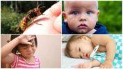 Системные проявления аллергии после укуса осы