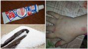 Мазь с ванилином от комаров и мошек