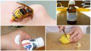 Средства для снятия зуда от укуса осы