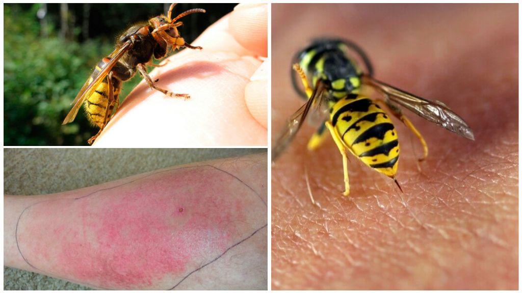 Опасность укуса осы