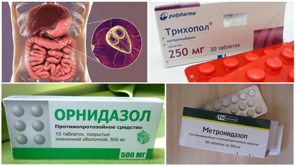 Средства нитроимидазола против лямблий