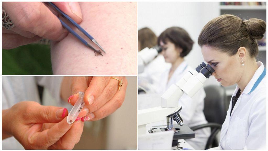 Анализы на боррелиоз и энцефалит в Инвитро