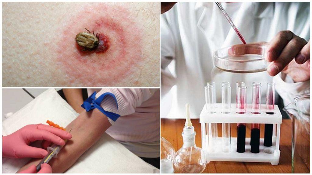 Исследование крови после укуса клеща