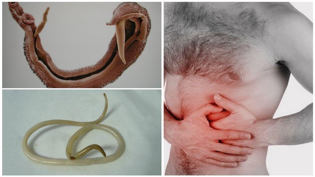 Шистостомы в поджелудочной железе