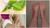 Лечение укуса насекомого на ноге