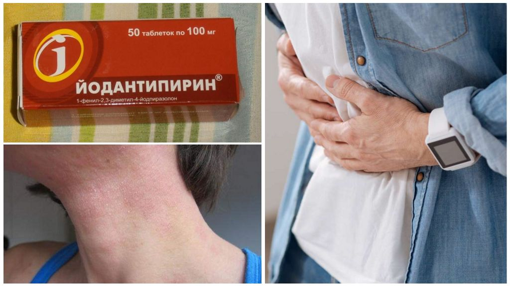 Побочные эффекты на прием Йодантипирина