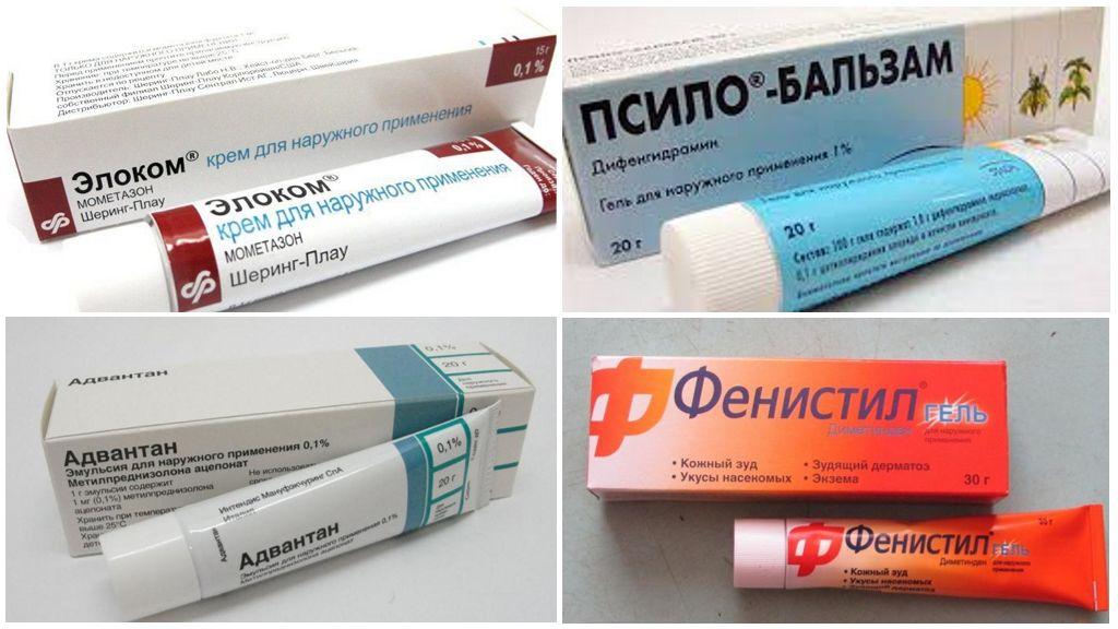 Кремы и мази от аллергии