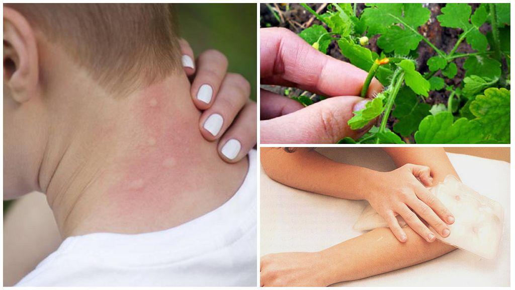 Как и чем лечить укусы насекомых