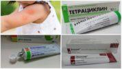 Мази для лечения укуса насекомого