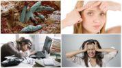 Причины демодекоза