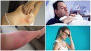 Симптомы аллергической реакции на укус