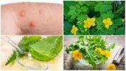 Травы от укусов насекомых