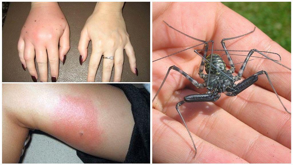 Аллергическая реакция на укус насекомого
