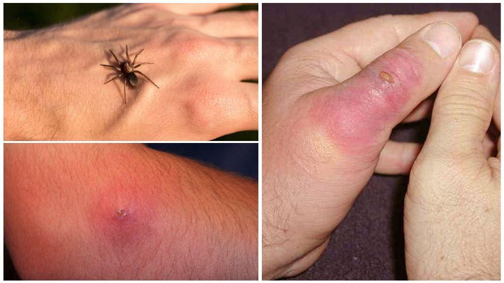 Описание и фото укусов разных видов насекомых у детей и взрослых