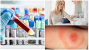 Анализ крови на болезнь Лайма