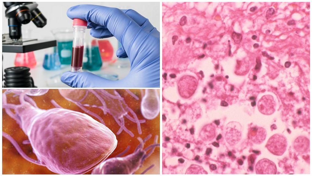 Диагностика лямблиоза и амебиаза