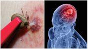 Клещевой вирусный энцефалит