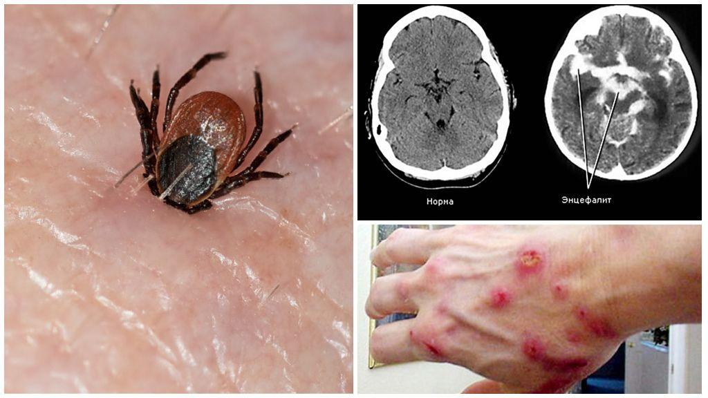 Клещевой энцефалит и боррелиоз