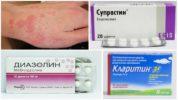 Лекарства при аллергии на прививку