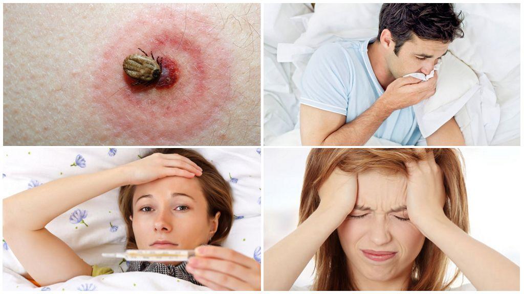 Признаки инфицирования энцефалитом