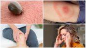 Последствия укуса клеща