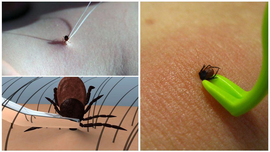 Что делать, если укусил энцефалитный клещ
