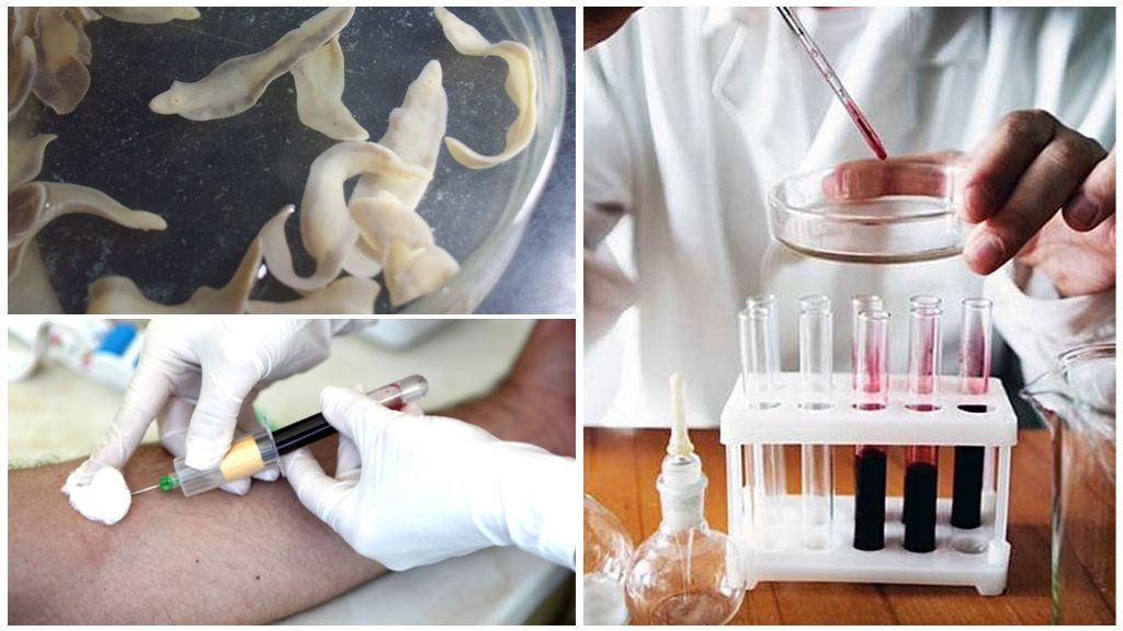Анализ крови на описторхоз