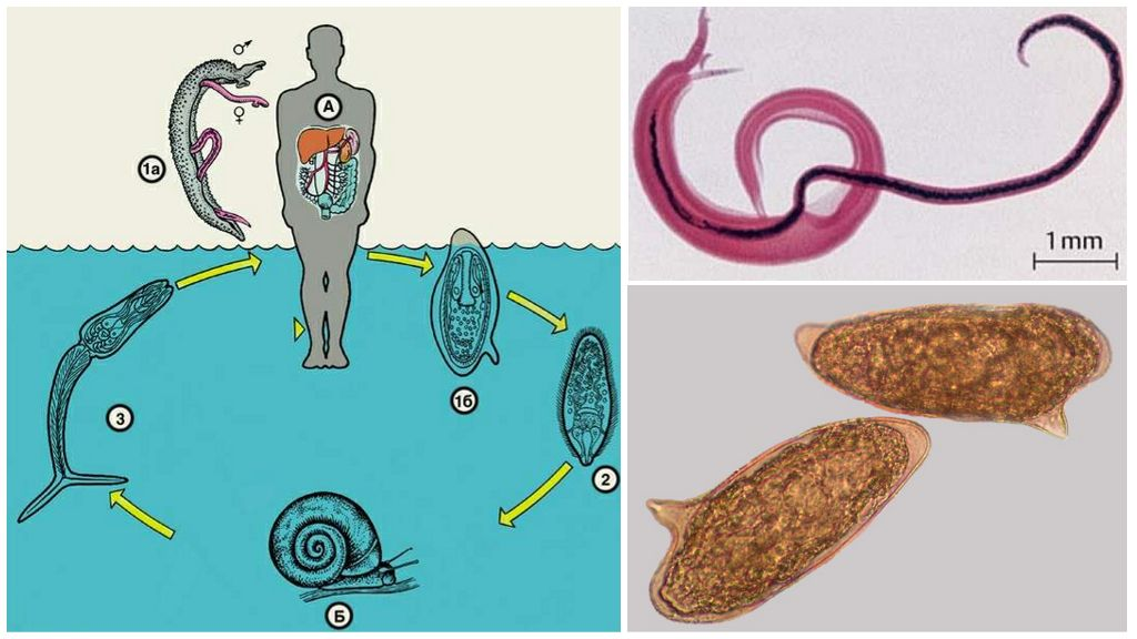 Жизненный цикл шистосомы