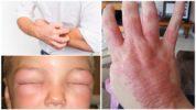 Аллергия на таракана