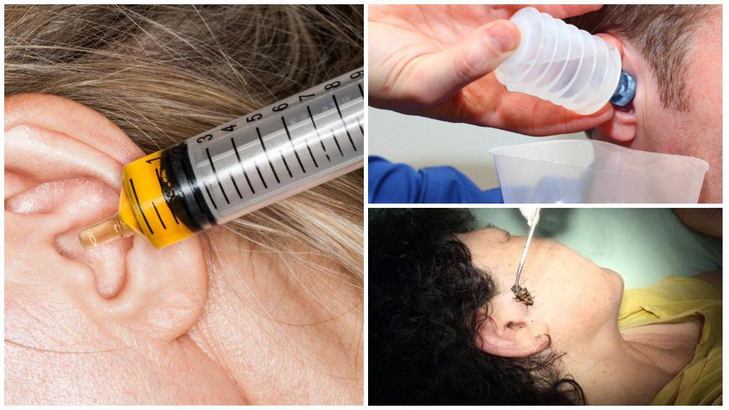 Извлечение таракана из слухового аппарата